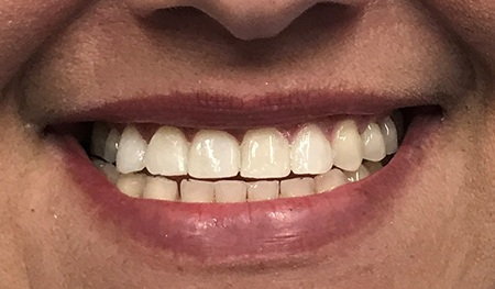 Top tooth flawlessly replaced
