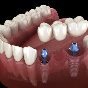 A digital image of the lower row of teeth and an implant-retained bridge being put into place