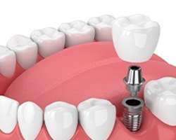 Diagram of single tooth dental implant in Alhambra