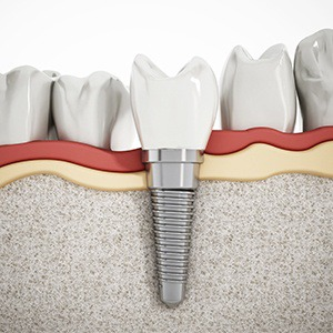 Parts of the cost of dental implants in Alhambra