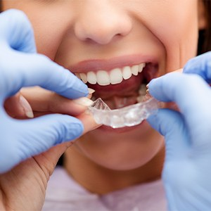 Dentist placing Invisalign tray
