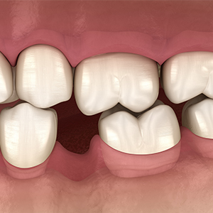 Animation of smile with missing tooth