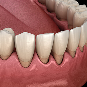 Animation of smile with severely receded gum tissue