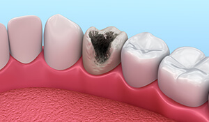 Animation of decayed tooth