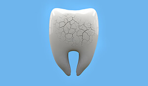 Animation of cracked tooth