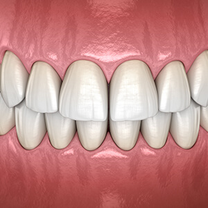 Animation of healthy teeth and gums
