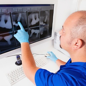Dentist looking at tooth x-rays