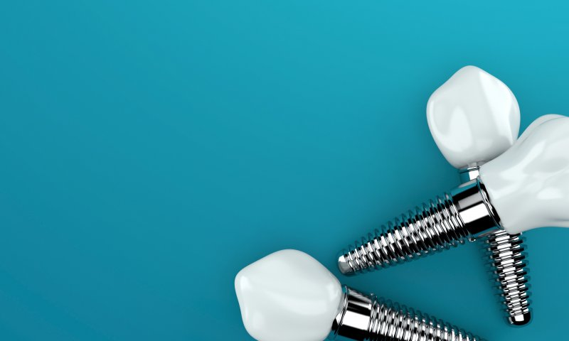three single tooth dental implants, complete with the posts and dental crowns